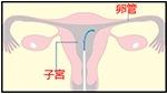 卵管鏡下形成手術